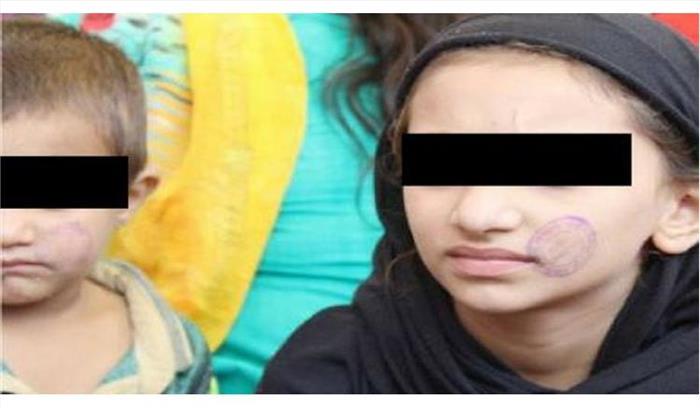 भोपाल सेंट्रल जेल में कैदियों के बच्चों के चेहरों पर सील लगाने का मामला गर्माया, जांच के आदेश