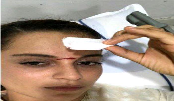 मणिकर्णिका फिल्म की शूटिंग के दौरान घायल हुईं कंगना रानौत, सिर पर लगे 15 टांके
