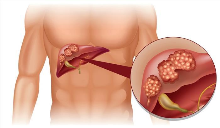 Liver fat से बढ़ता है