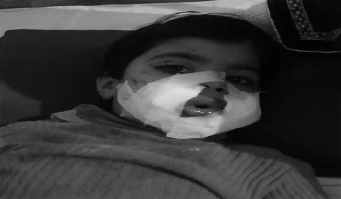 मेरठ में एक शख्स ने बच्ची के मुंह में बम फोड़ा, अस्पताल में नाजुक हालत में भर्ती