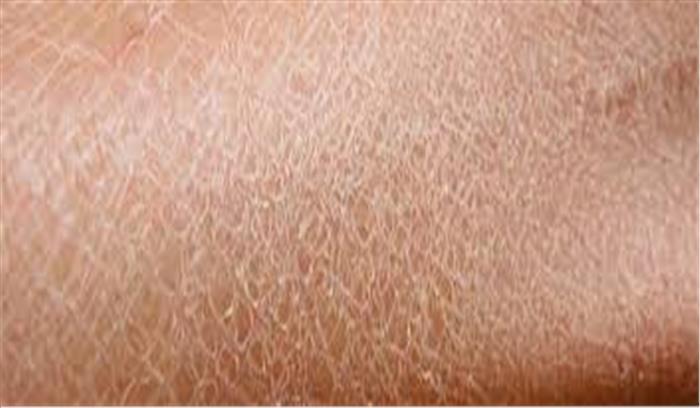 सर्दियों में रूखी त्वचा से हैं परेशान, अपनाएं ये घरेलू टिप्स और पाएं नर्म और मुलायम त्वचा